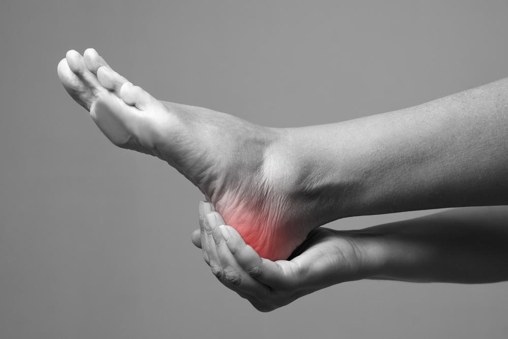 Diagnosis of heel spur