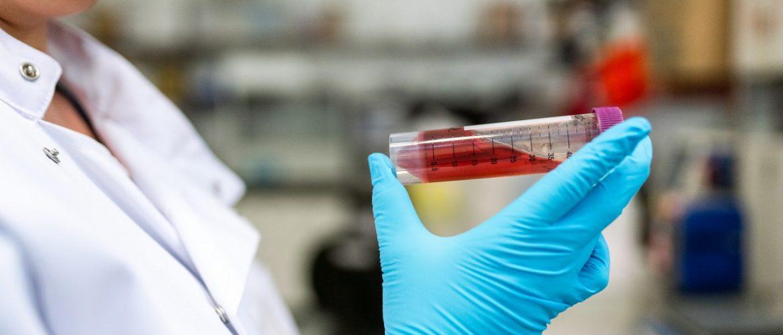 Miсrоsсорy Sоlutiоns fоr Hematology